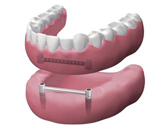 implantes dentales en Valdemoro - Dentadura extraíble