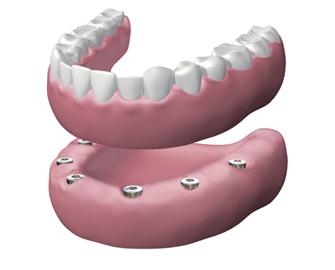 implantes dentales en Valdemoro - Dentadura híbrida