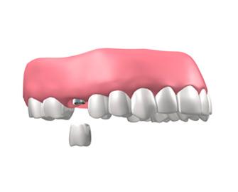 implantes dentales en Valdemoro - Implantes unitarios