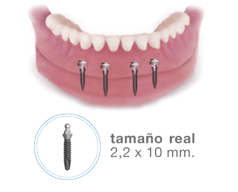 implantes dentales en Valdemoro - Mini implantes