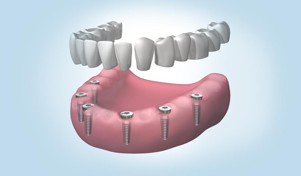 dentadura fija