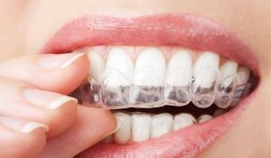 ortodoncia invisible - dentistas en Valdemoro