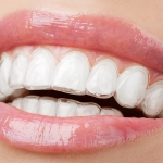 ortodoncia invisible - Clinica dental Valdemoro