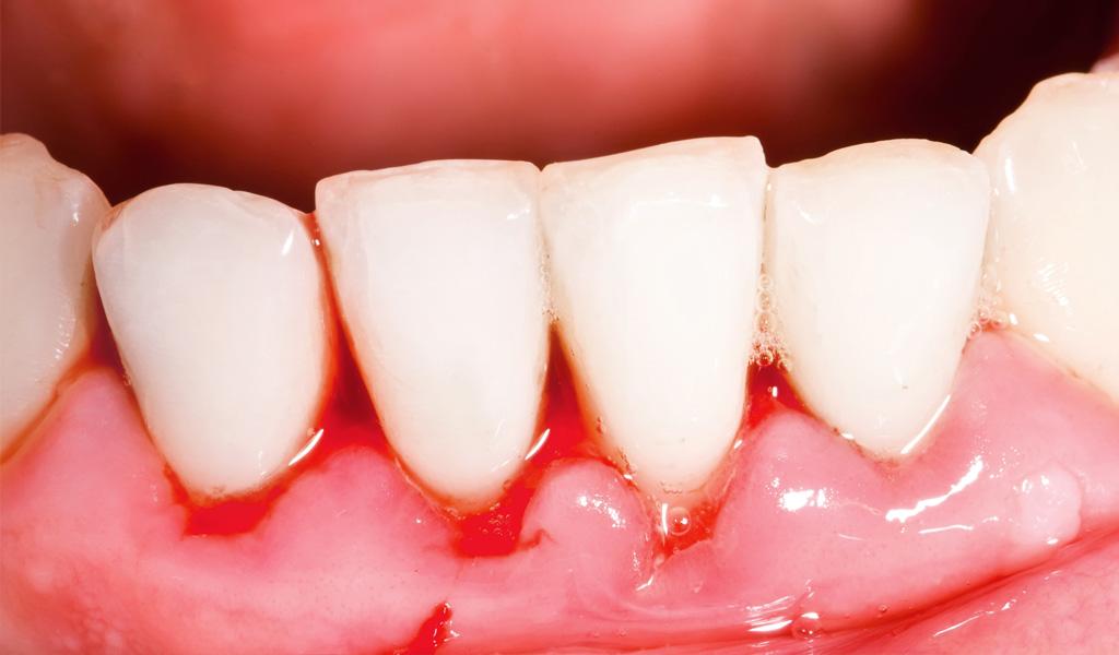 urgencias dentales Valdemoro