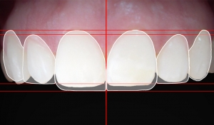 estética dental en Valdemoro