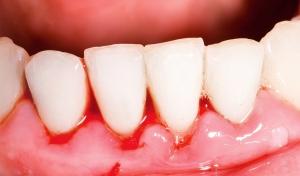 higiene dental en Valdemoro