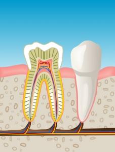 endodoncia en Valdemoro