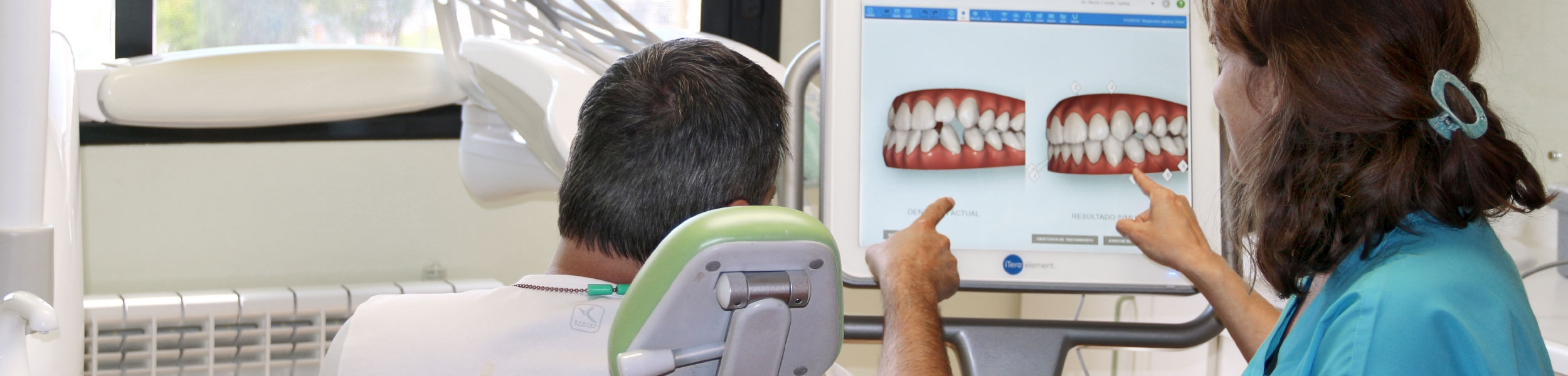 Escáner intraoral 3D Itero