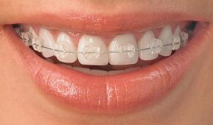 ortodoncia en Valdemoro