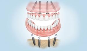 Dentadura fijada con implantes dentales en Valdemoro