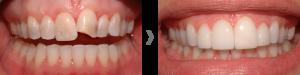 Carillas dentales sin rebajar el diente en Valdemoro
