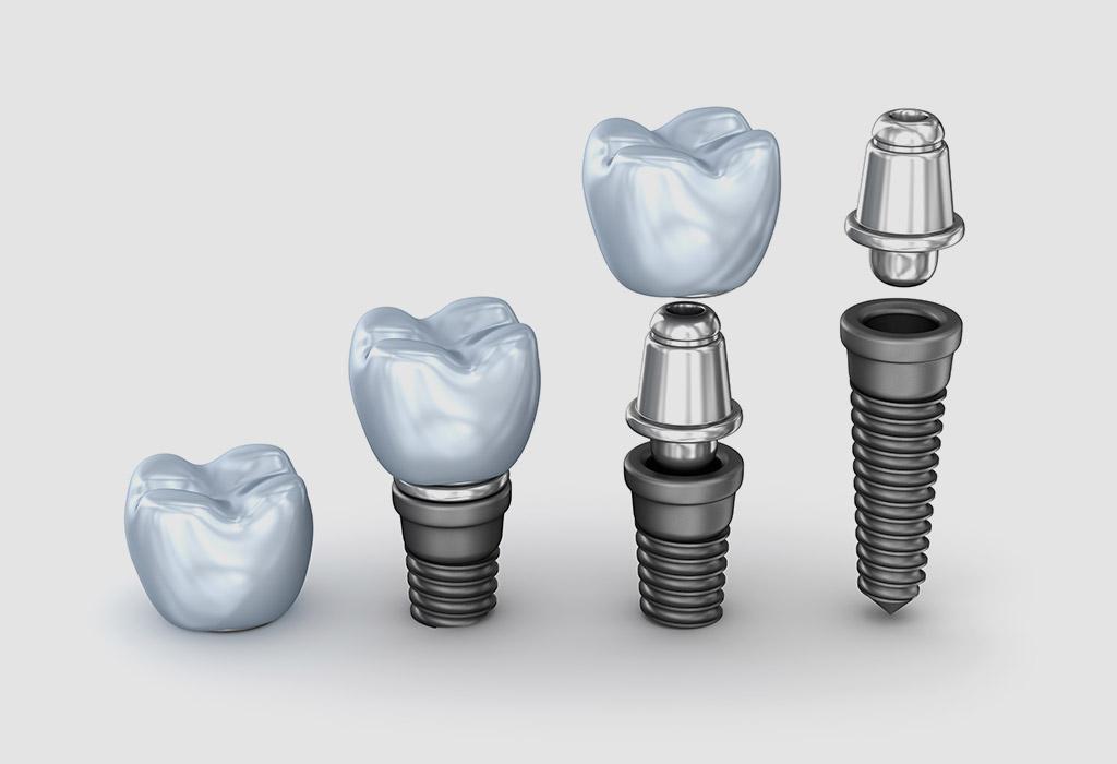 Implantología dental en Valdemoro