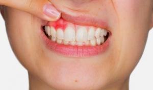 Infección de boca en Valdemoro
