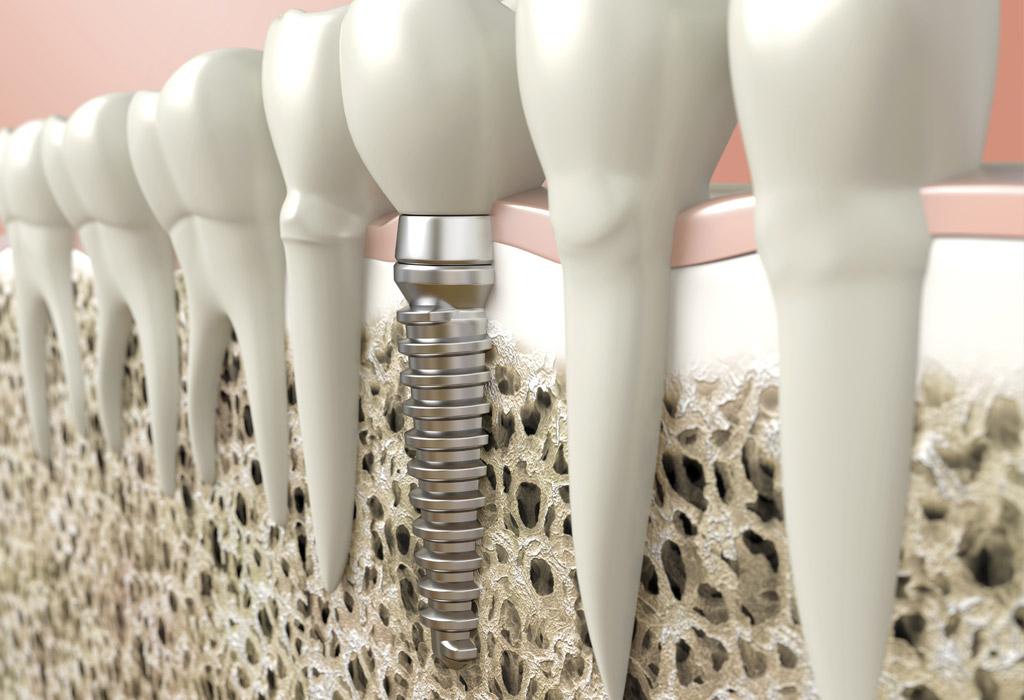 Implantes unitarios en Valdemoro