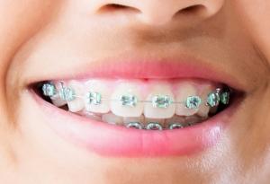 Ortodoncista en Valdemoro
