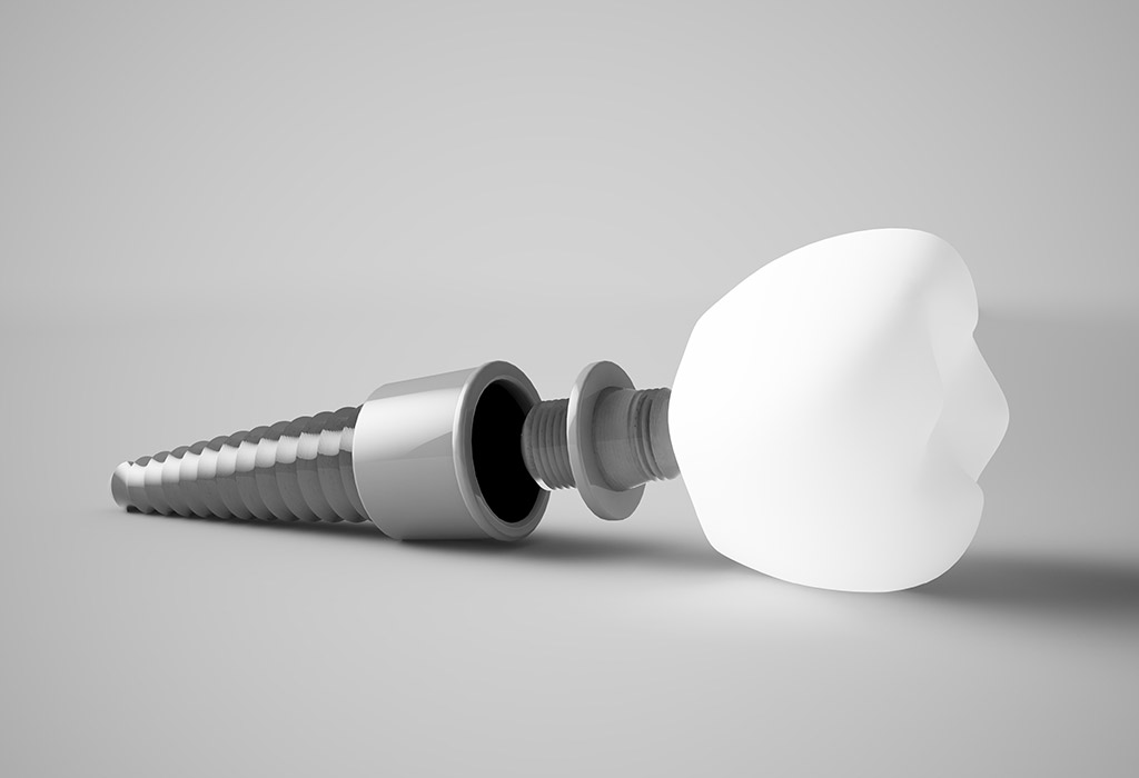 Implantes dentales de carga inmediata en Valdemoro