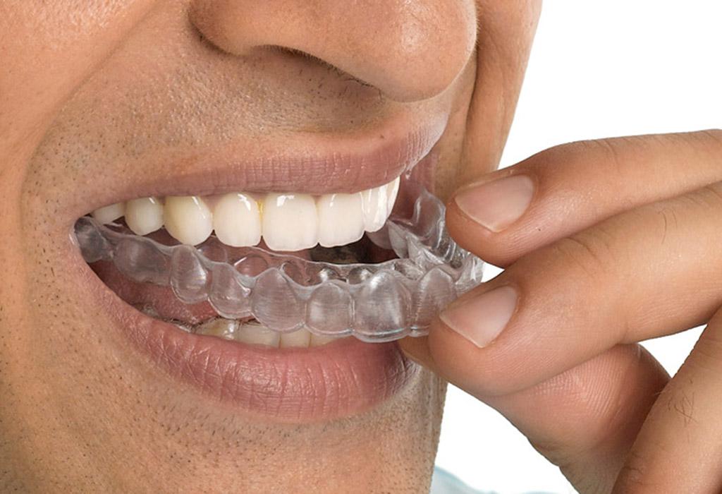 bruxismo y ortodoncia en Valdemoro