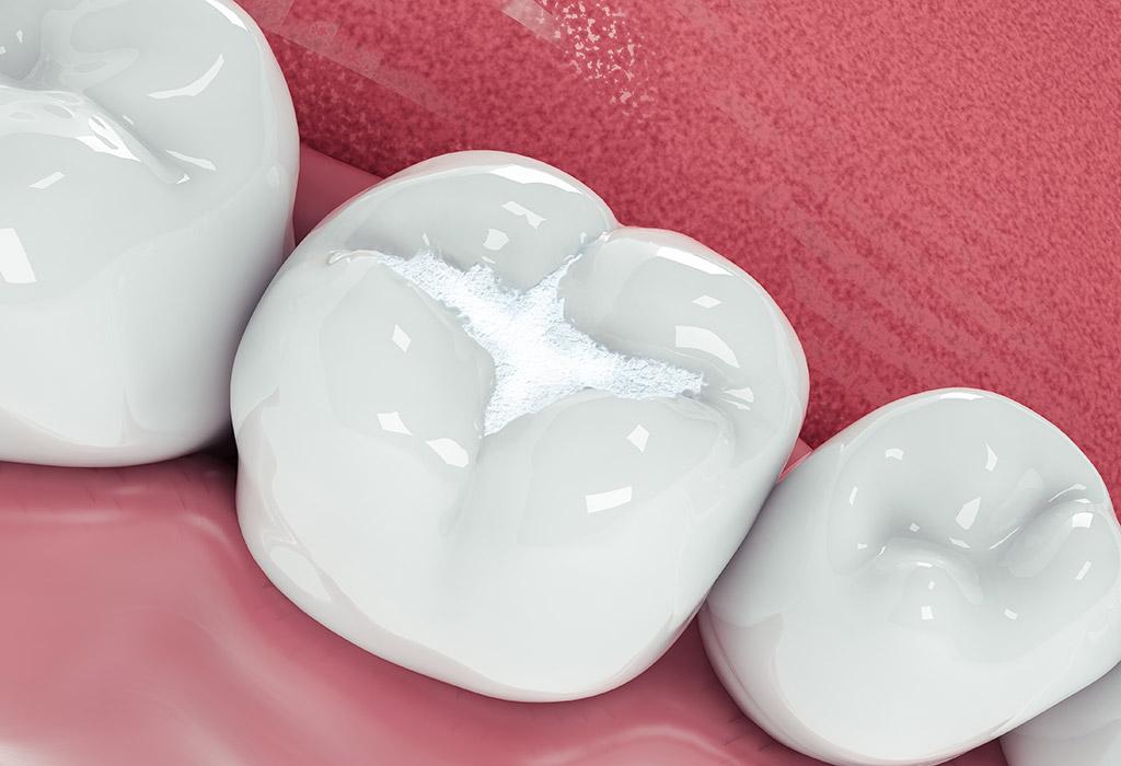 Odontología conservadora en Valdemoro